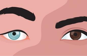 Gözünün üstünde kaşın var, kaşının altında göz