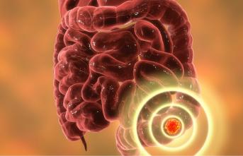 Kolon kanseri: Düzenli kolonoskopi taramaları hayat kurtarıyor!
